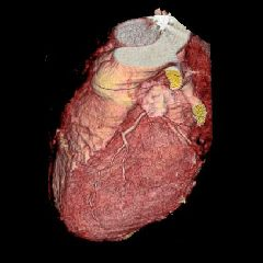 3d reconstruction of the heart